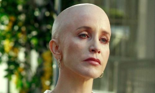 cancer-lynette